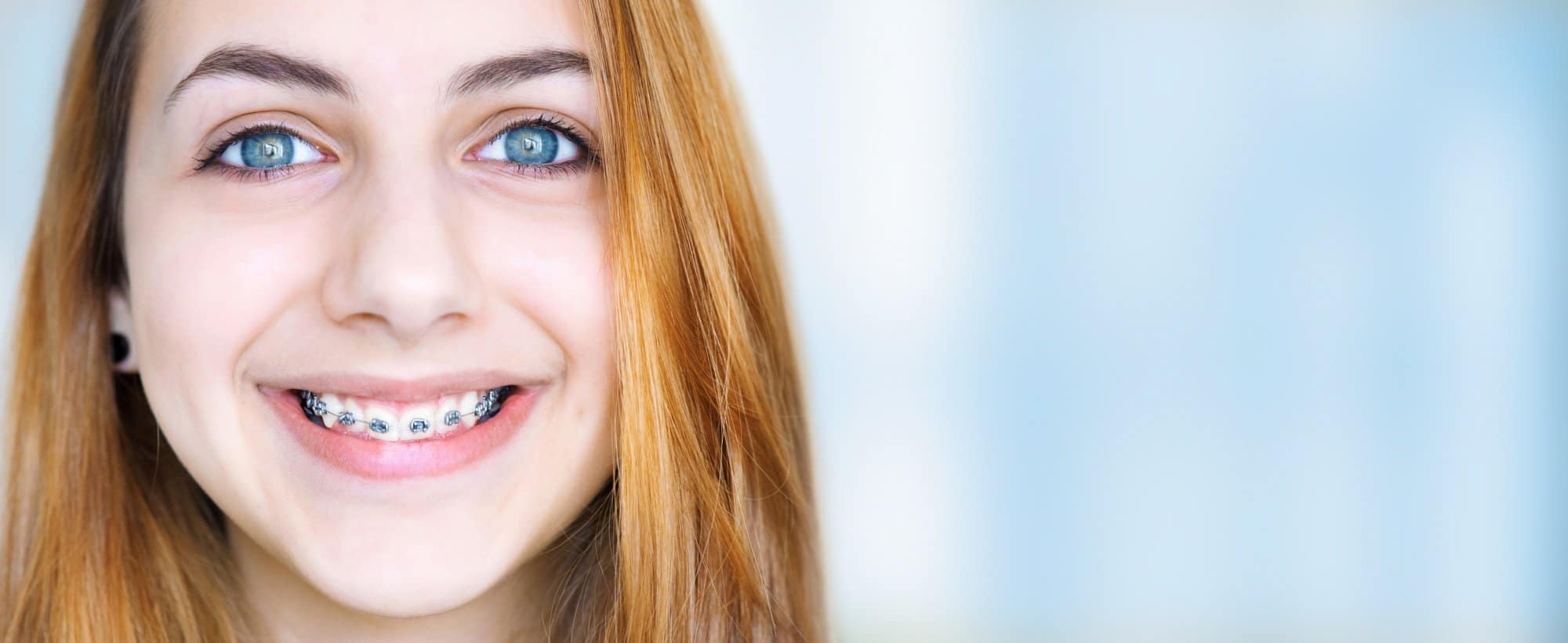 Traditional and invisible braces offered by Always A Smile Dental