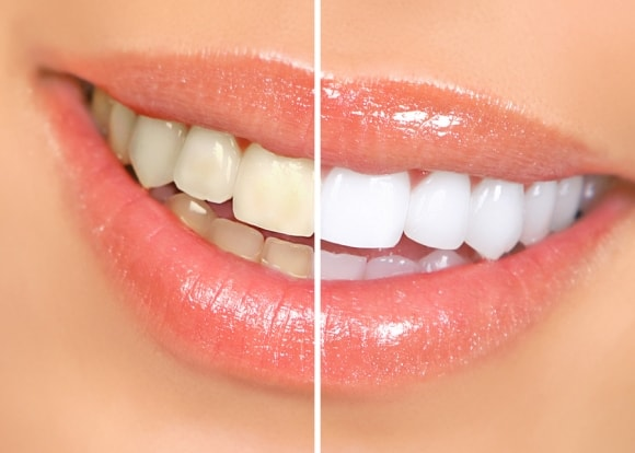 teeth-whitening-in-grand-rapids